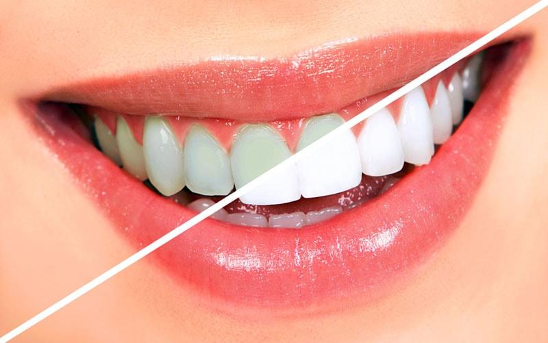 Ультразвуковая чистка зубов минусы